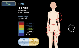 Pantalla zonas tratamiento láser lipólisis