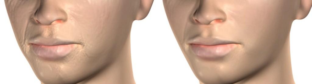 rejuvenecimiento facial antes y despues