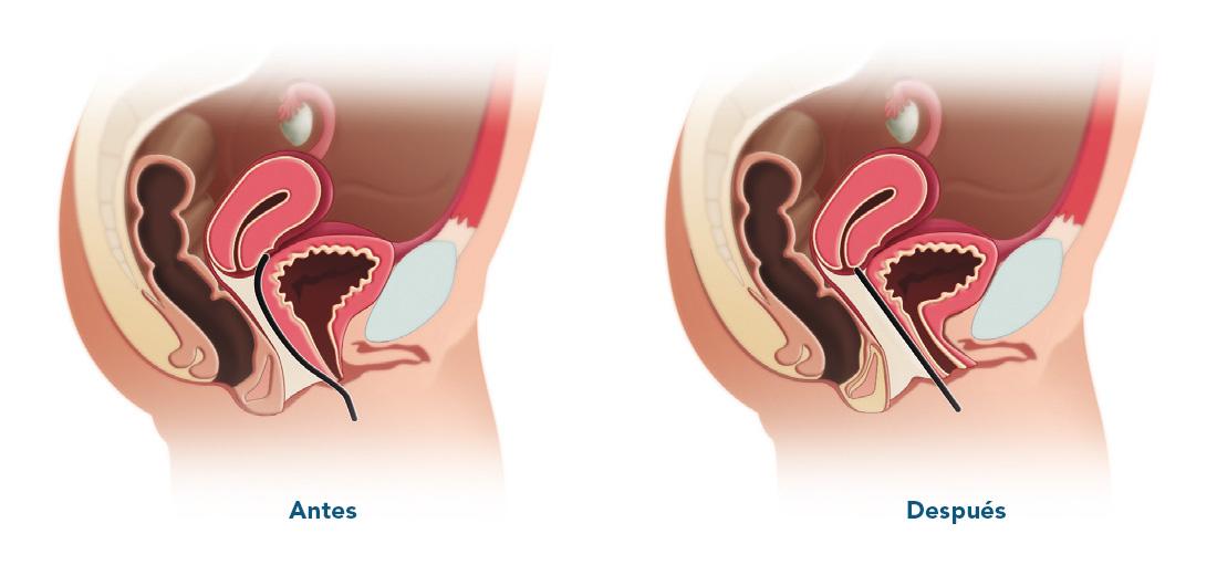 Antes y después tratamiento Gynelase - INTERmedic