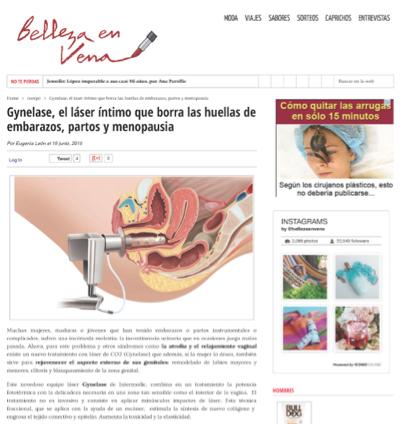 gynelase-belleza en vena