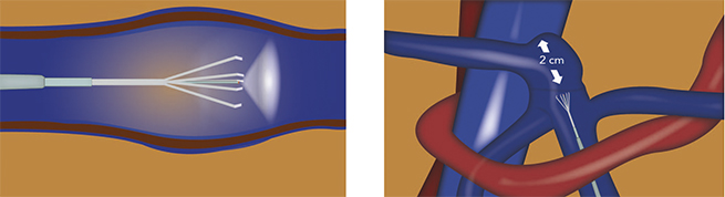 gráfico interior vena endotulip