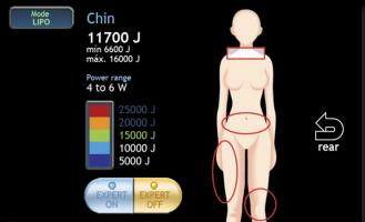Pantalla zonas de tratamiento láser lipólisis