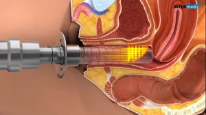 Accion GYNELASE en mucosa vaginal