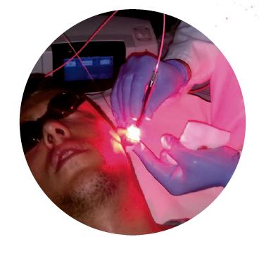 terapia fotodinamica 1
